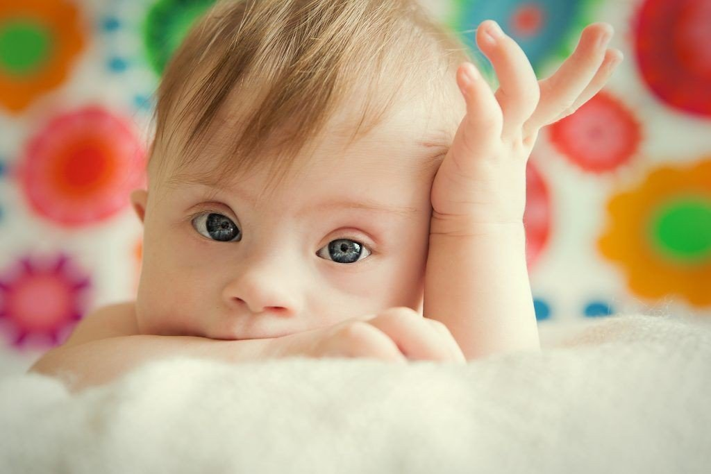 Baby-with-Downs-Syndrome